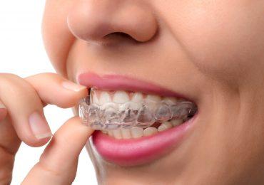 Aparato de ortodoncia Invisaling