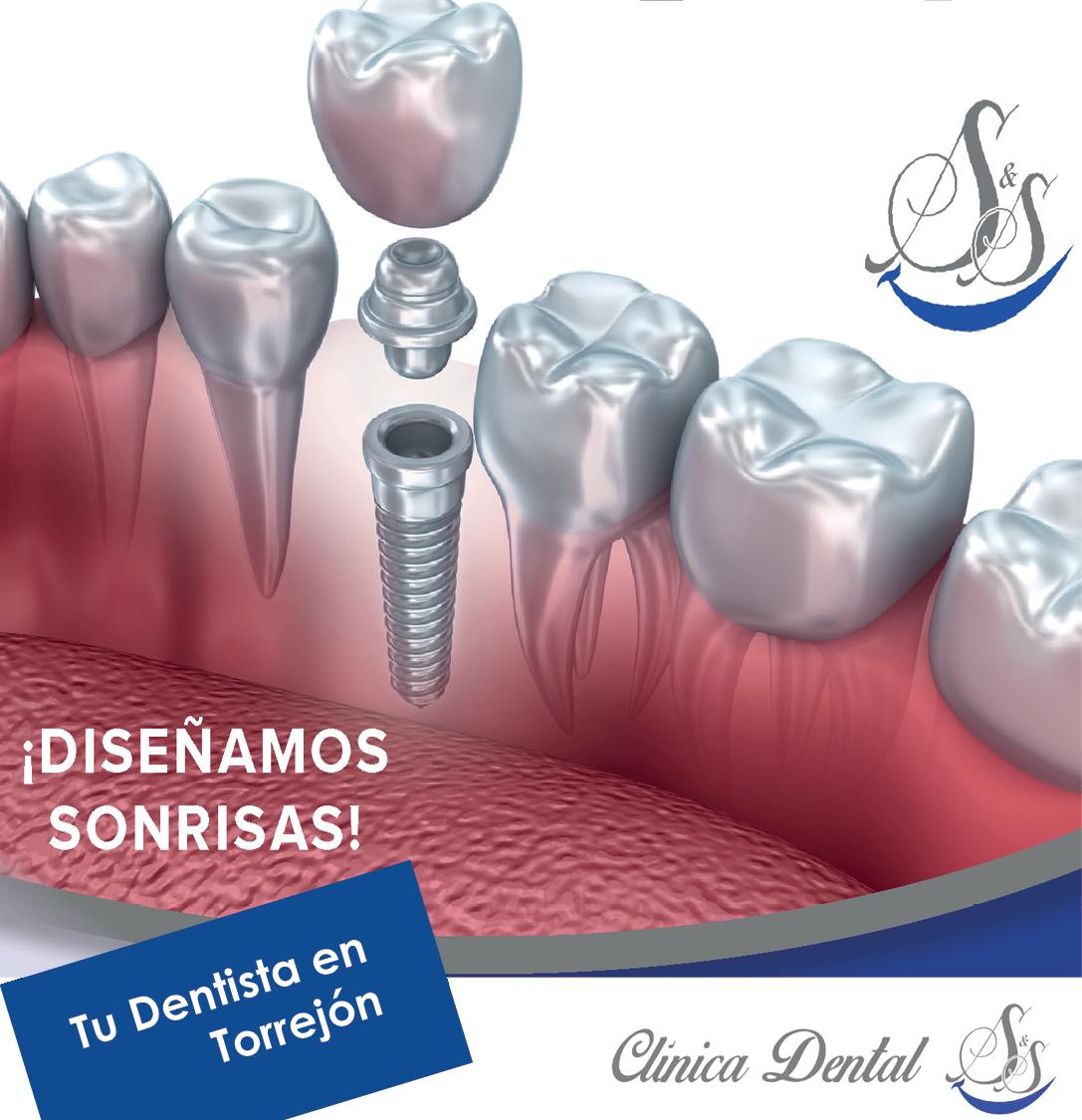 Implantes dentales Clínica Dental S&S