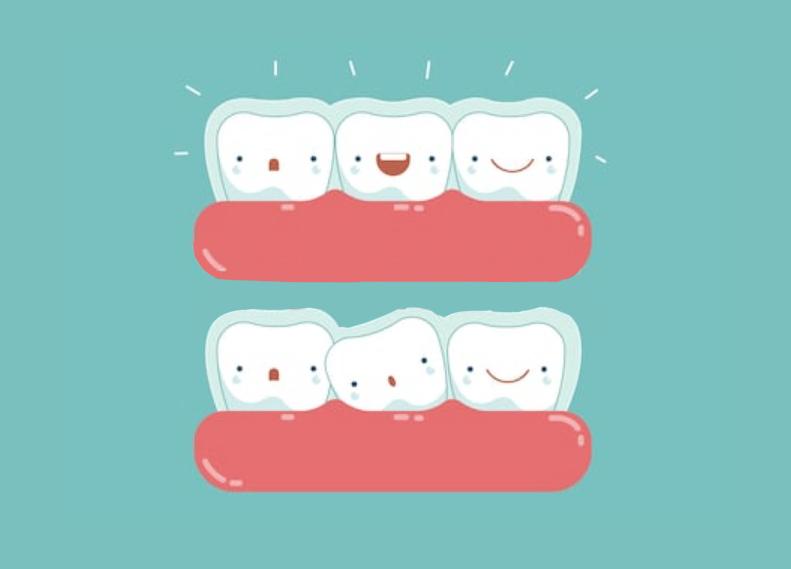 ortodoncia invisalign 2